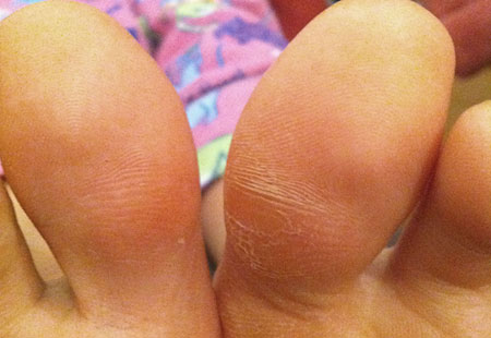 Big toe callus