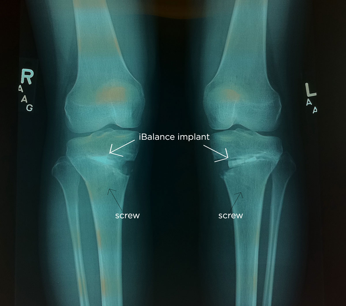 High tibial osteotomy physical therapy - X Ray Taken On April 26 2011