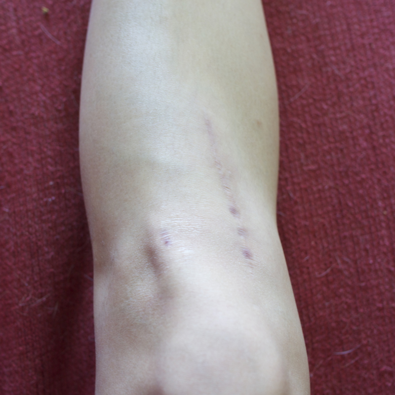 Recovery Update 16 Months Since Tibial Osteotomy Not A