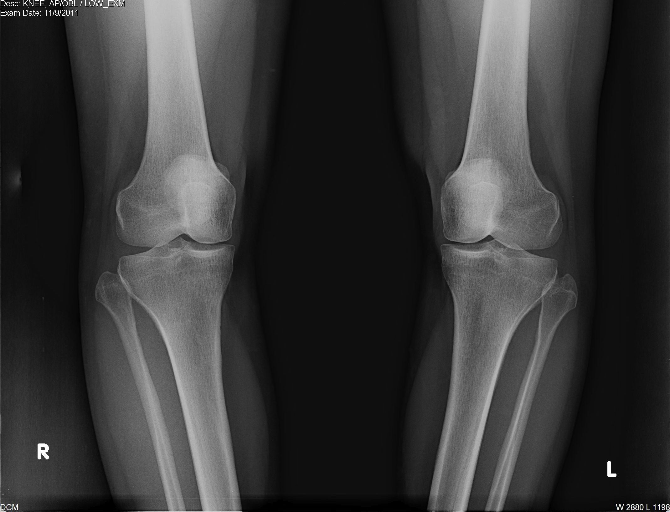 High tibial osteotomy physical therapy - Both