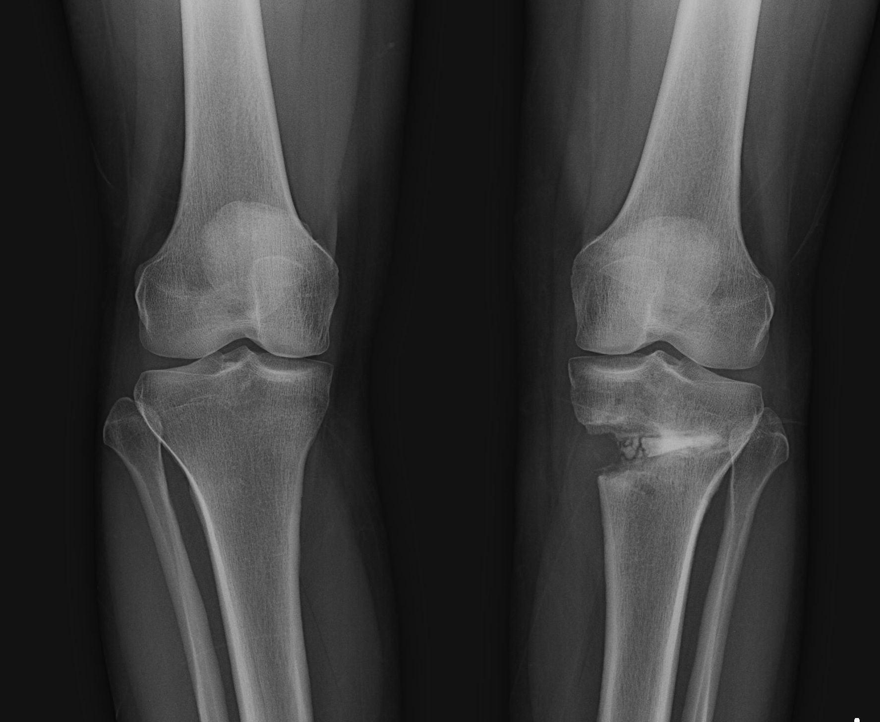 High tibial osteotomy physical therapy - Three Months After First Surgery Some Bone Regrowth Visible On Outside Of Tibia Fuzzy White