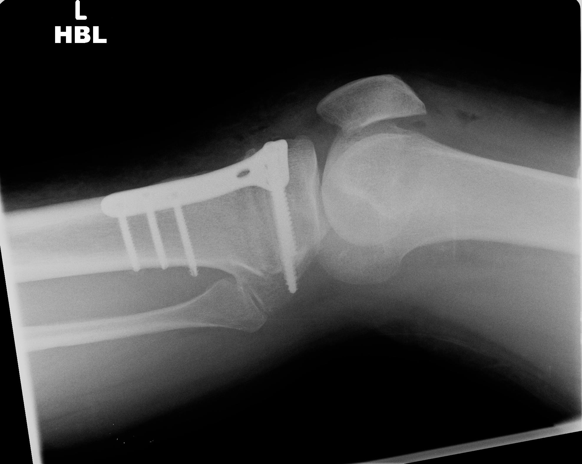 High tibial osteotomy physical therapy - Day 4