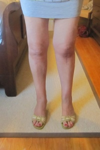 Leg on right operated on Feb. 2014, leg on left operated on Sept. 13. Still some swelling on most recent leg.